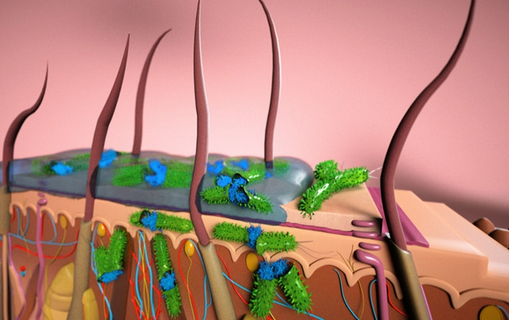 Artist's rendition of a cross section of skin layers (stratum corneum, epidermis and dermis) showing topical application of an ionic liquid for combating a skin-borne bacterial infection. The ionic liquid can be formulated with antibiotics for transdermal drug delivery or it can directly kill the bacteria infesting the skin surface. (Credit: Peter Allen, UCSB)