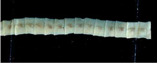 Japanese Broad Tapeworm. Image-CDC