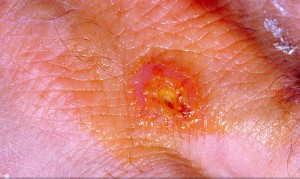 A Tularemia lesion on the dorsal skin of right hand. Tularemia is caused by the bacterium, Francisella tularensis. Symptoms vary depending on how the person was exposed to the disease, and as is shown here, can include skin ulcers. Source: CDC Public Health Image Library