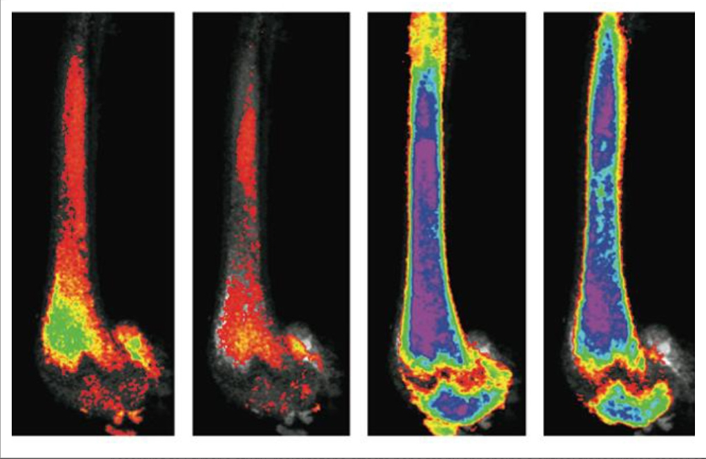 Images of bones stained with osmium. Left: bone fat decreased due to exercise. Right: bones of mice on high dose of rosiglitazone. Far right image shows decrease in bone fat due to exercise.