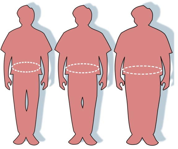 Silhouettes and waist circumferences representing normal, overweight, and obese. Image-Public Domain