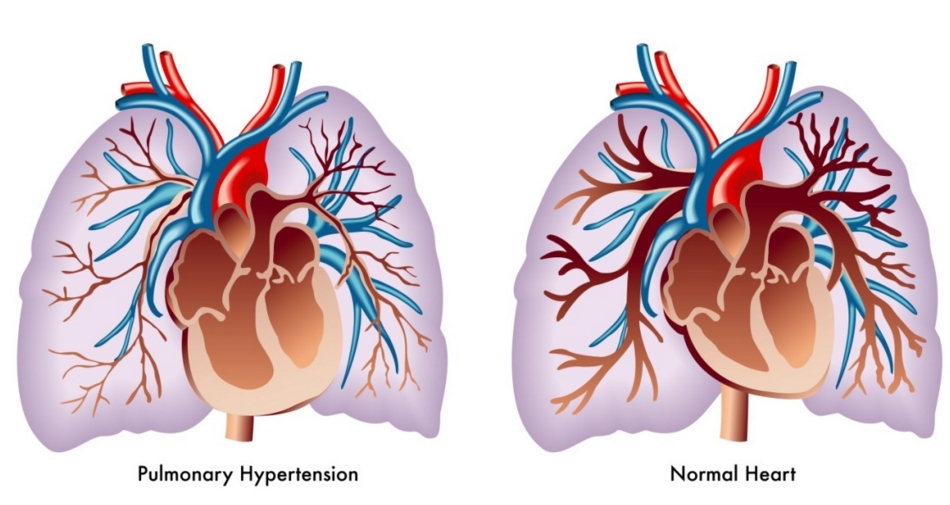 Image showing the differance between a normal functioning heart and one with Pulmonary Hypertension. Image-CDC