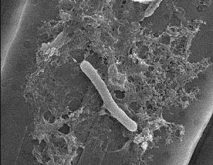 This scanning electron microscope image shows Bacteroidetes bacteria on the algae Pseudo-nitzschia multiseries. Production of the toxin domoic acid seems to depend on the interaction between bacteria and algae. (Image credit: Sison-Mangus Lab)